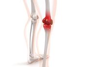 膝の痛み・変形性膝関節症の治療は1日でも早い方が良い?